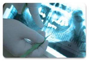 Consultație stomatologică
