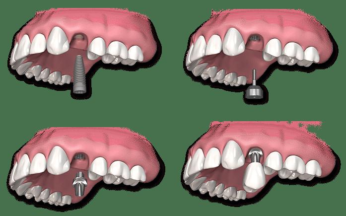 single-dental-implant-procedure