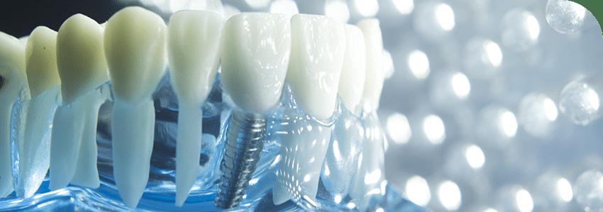 implantul dentar chiar schimba viata pacientilor