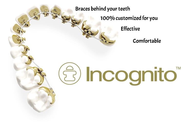 Aparat dentar invizibil fix