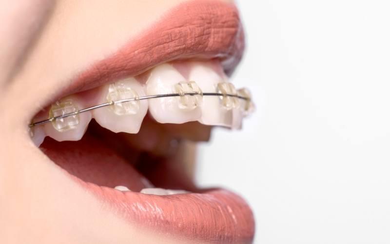 Cel mai bun aparat dentar