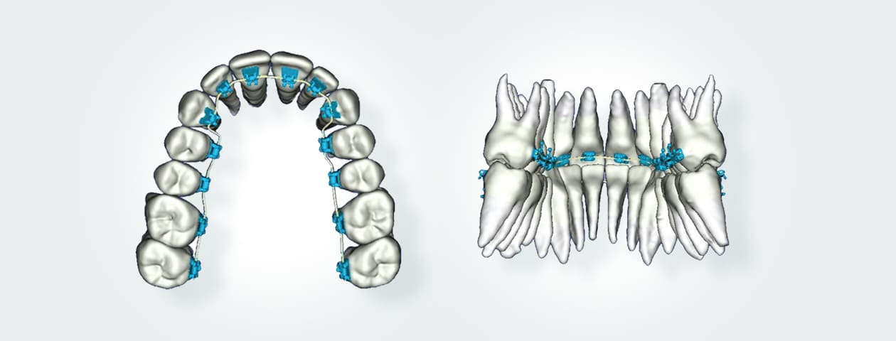 laser dentar